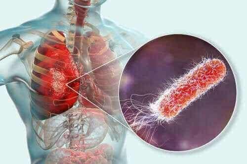 Er der bakterier i lungerne?