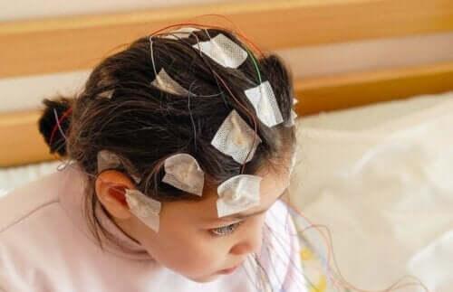 Pige med elektroder på hoved bliver tjekket for epilepsi i barndommen