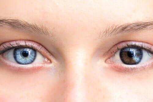 Ændringer i øjenfarve kan være grund til bekymring