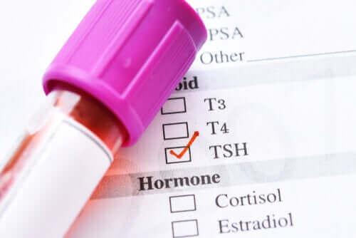 Årsagerne til lavt thyroideastimulerende hormon
