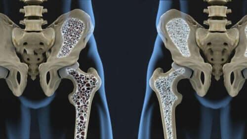Illustration af knogleskørhed