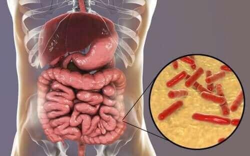 Sådan kan man se, om ens tarmflora er beskadiget