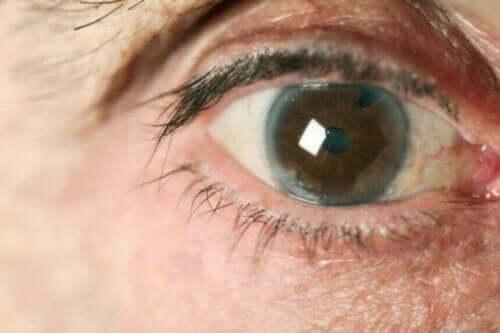 Nærbillede af øje viser eksempel på forskellige typer af grøn stær