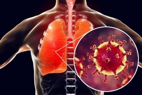 Denne lunge er inficeret med virus