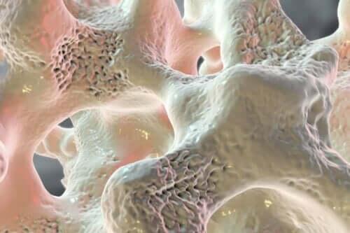 Illustration af knogleskørhed grundet for lavt calcium