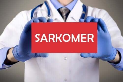 Typer af sarkomer og deres karaktertræk