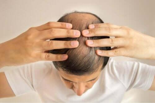 Skaldet mand kan få os til at stille spørgsmålet, om man kan tabe håret på grund af keto-kuren