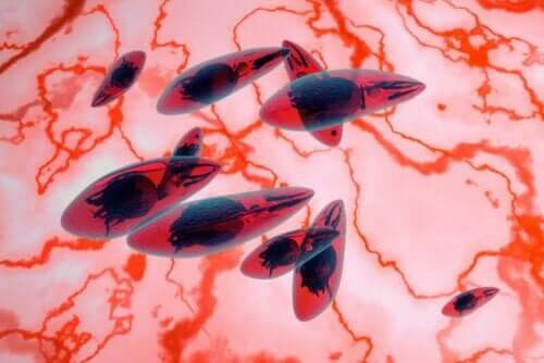 Mikroskop viser parasitter ved okulær toxoplasmose