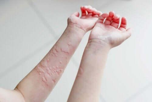 Udslæt på arme grundet kronisk nældefeber