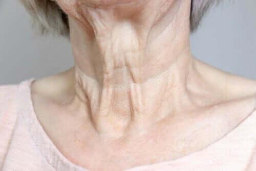 Hals illustrerer en af de gængse typer af rynker