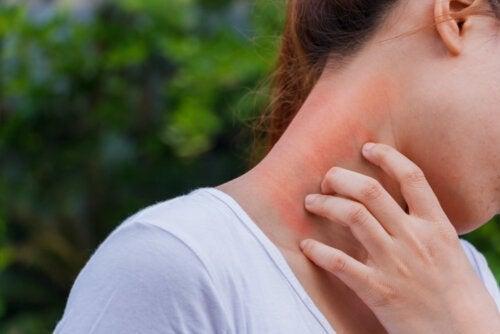 Forbindelsen mellem dermatitis og kortikosteroider