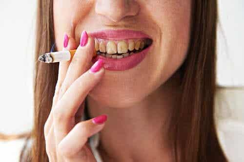 Alt om rygers melanose: En af farerne ved rygning