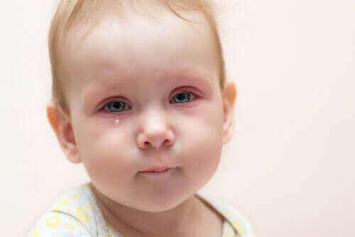 Øjenbetændelse hos børn: Hvad skal man gøre?