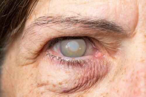Blindt øje illustrerer tab af synet