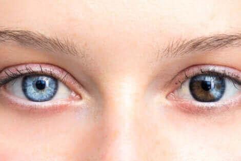 Illustration af ændring i øjenfarve