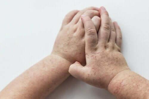 Udslæt på hænder grundet skarlagensfeber