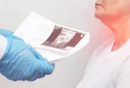 Knuder i skjoldbruskkirtlen: Symptomer og årsager