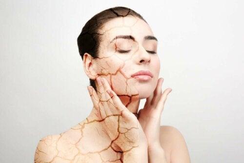 Kvinde med tør og revnet hud