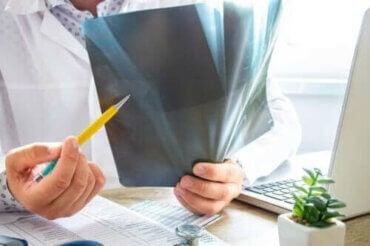 Knoglemarvsødem: Alt, hvad du bør vide