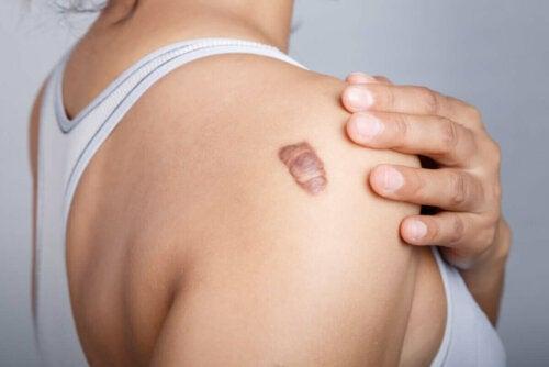 Kvinde med stort modermærke kan nyde godt af de forskellige effekter af resveratrol