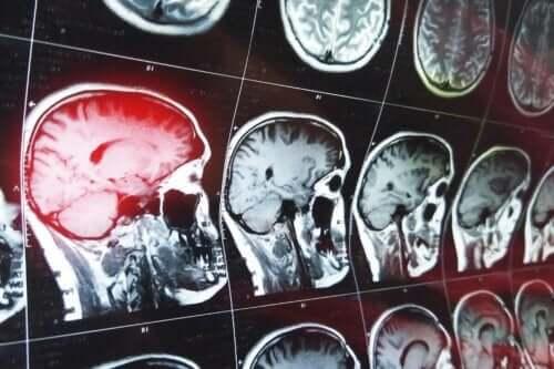 Scanningsbilleder af hjerne