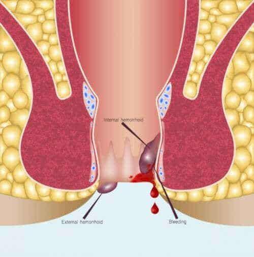 Anoskopi - Et overblik over proceduren