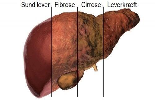 Illustration af leveren og levermetabolisme