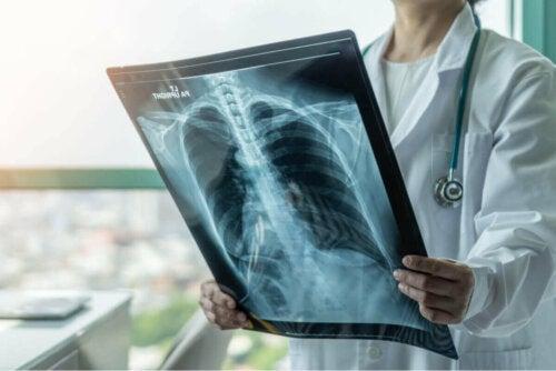 Røntgen af lunger