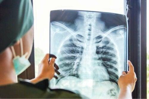 Røntgen af lunger til lungetransplantation