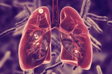 Hvad er lungetuberkulose og dets symptomer?