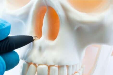 Illustration af nasal septumperforation i næsehuler