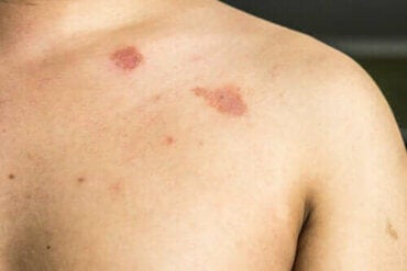 Beskrivelse og karaktertræk for Pityriasis Versicolor