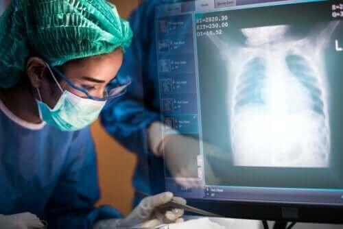 Lungetransplantation: Alt, hvad du bør vide