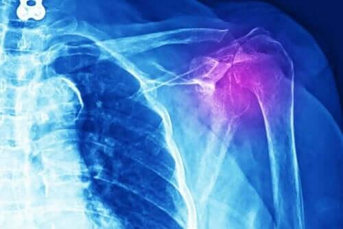 Røntgen af skulder