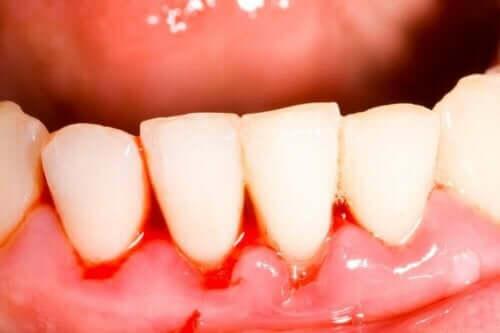 Tandkød, der bløder