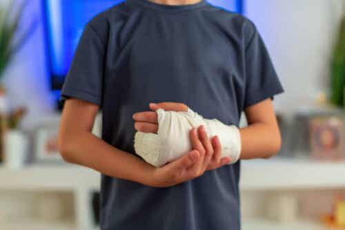 Barn med den ene hånd i gips