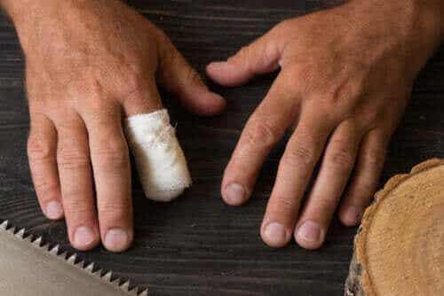 Førstehjælp i tilfælde af en utilsigtet fingeramputation