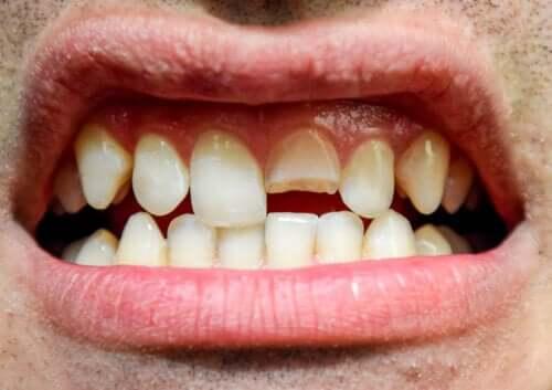 Tandskader: Hvad er det, og hvilke typer findes der?