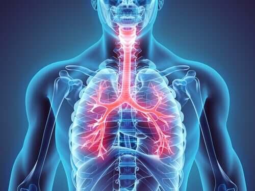 Verdens astmadag: Du kan kontrollere denne sygdom
