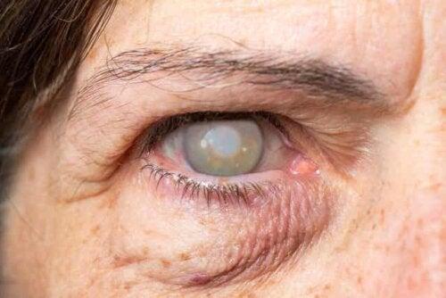 Øje med sygdom