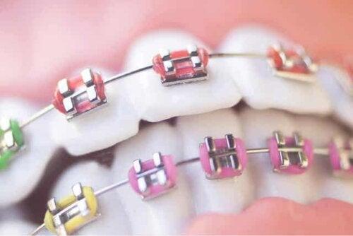 Tandbøjle med forskellige farver