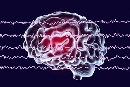Betydningen af at stimulere alfabølger