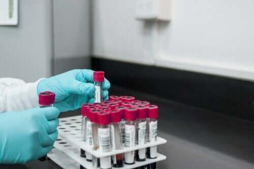 Rapid plasma reagin-test til diagnosticering af syfilis