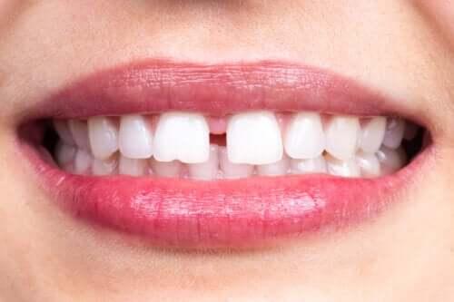 Karakteristika og årsager til mellemrum mellem tænderne