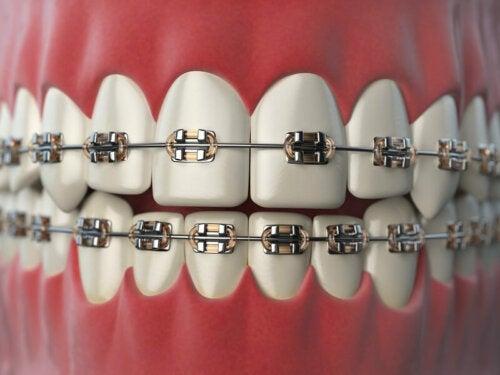 8 plejetips til mennesker med ortodonti