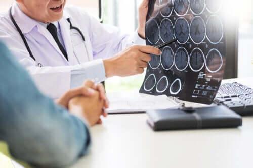 Mundbetændelse: En mulig begyndelse på Alzheimers