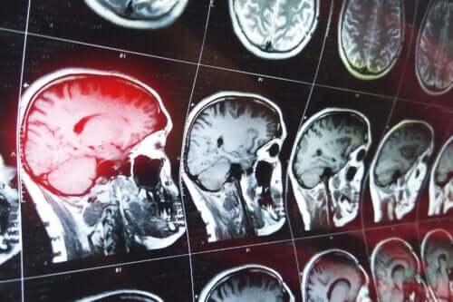 Intrakranielt hæmatom: Hvad er det, og hvordan behandles det?