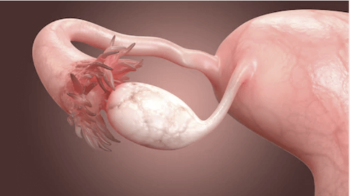 Årsager til blokerede æggeledere