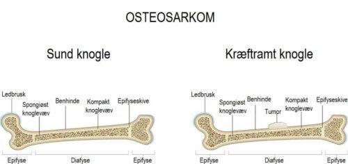 Illustration af osetosarkom hos børn