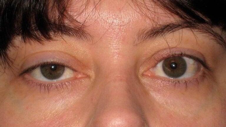 Ptose eller hængende øjenlåg: Årsager og behandlinger